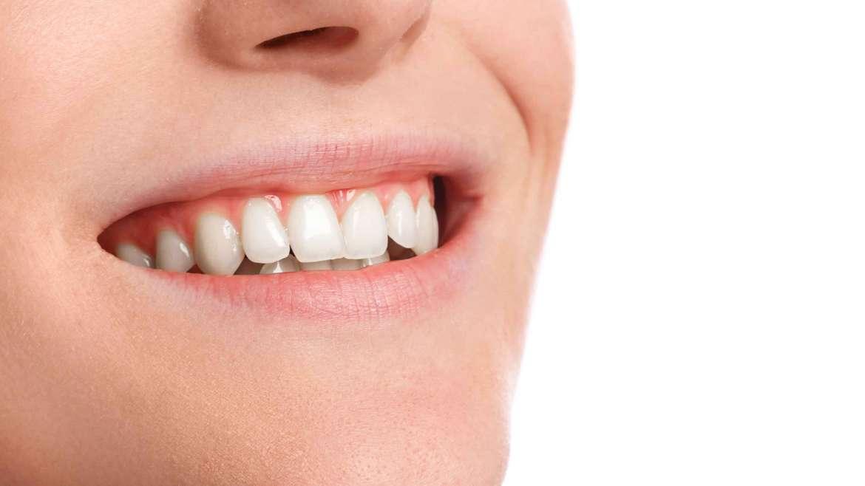 Errores que cometes y afectan a tus dientes (II)