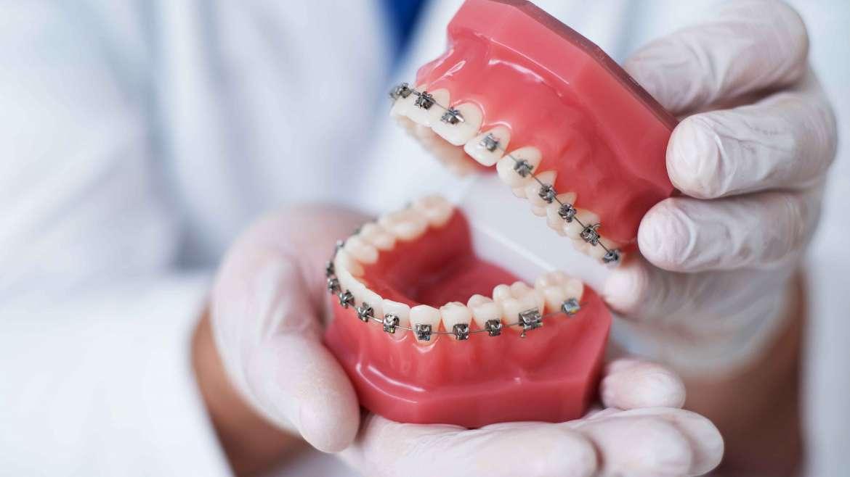 Ortodoncia y efectividad