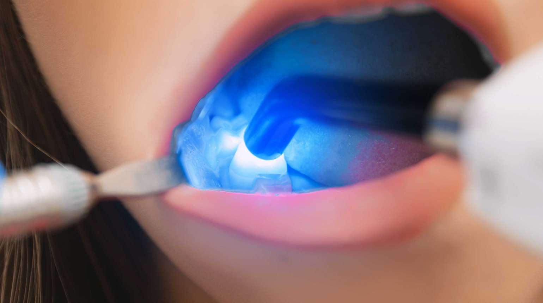 El láser en odontología