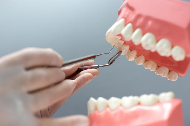 ¿Qué es el curetaje dental?