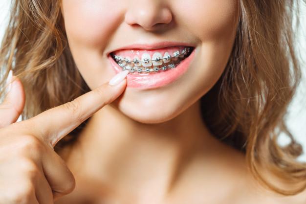 ¿Se me van a mover los dientes una vez finalice la ortodoncia?