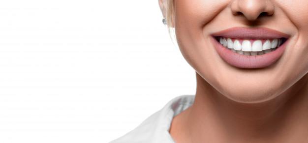 ¿Qué son los brackets linguales?