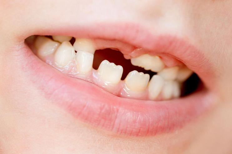 ¿Qué son los mamelones dentales?