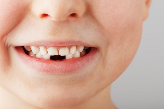 ¿Cómo se posicionan los dientes definitivos tras la caída de los dientes de leche?