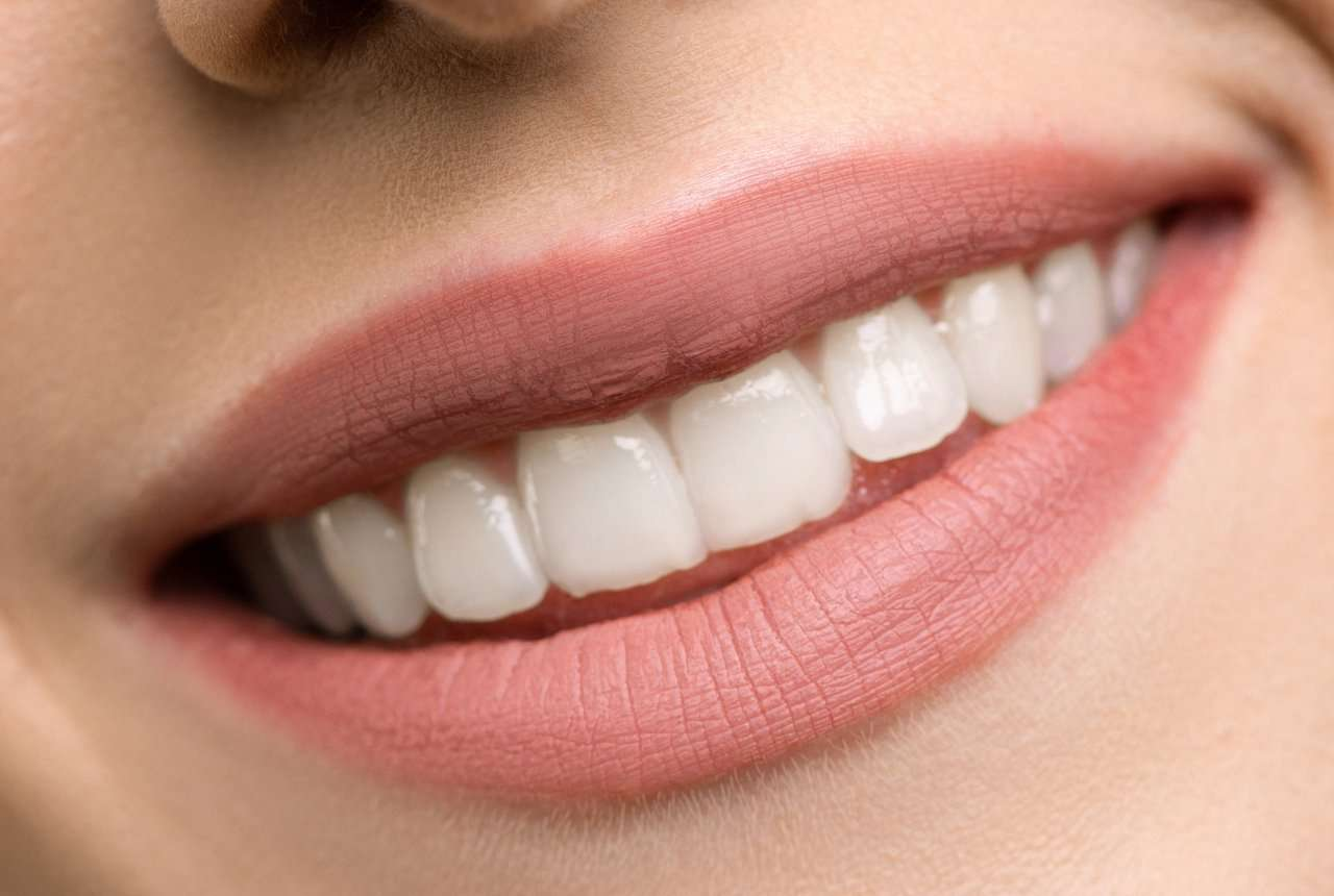 Tendencias peligrosas – Limarse los dientes