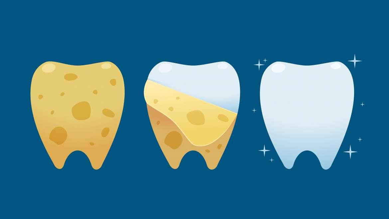 Manchas dentales: soluciones