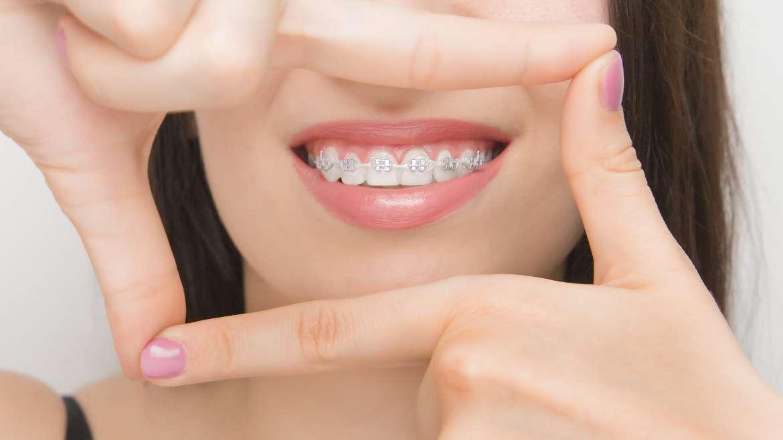 Brackets y piercing, ¿son compatibles?
