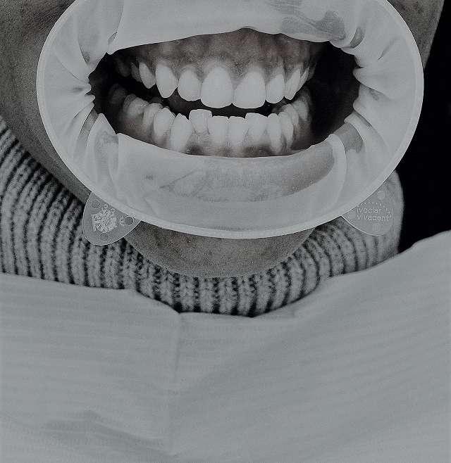 Qué es un abrebocas odontológico