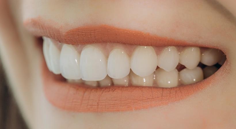 Las carillas dentales: ventajas