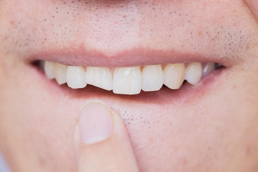 Consecuencias de un traumatismo dental