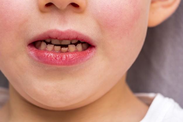 Consejos para cuidar los dientes de tu hijo (III)