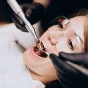 ¿Cuándo se hace una reconstrucción dental?